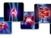 stawy artroser