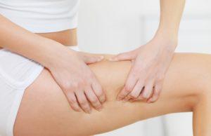 kobiece udo z cellulitem